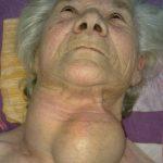 Izgled tumora štitaste žlezde pre operacije